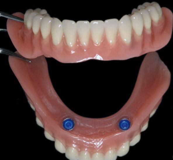 Протезирование на имплантатах при полном отсутствии зубов